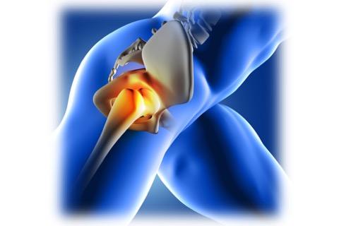 股関節痛2
